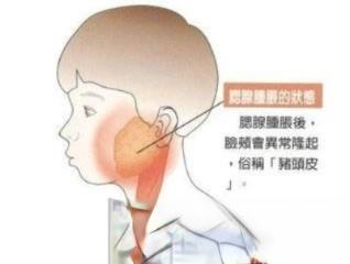 敷胡椒粉可以治腮腺炎红肿