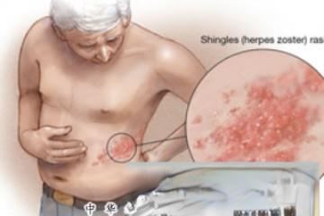 带状疱疹最怕胡椒粉!
