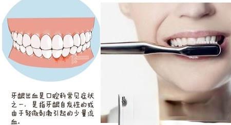 牛角汤治齿衄(牙龈出血)100余例均收良效