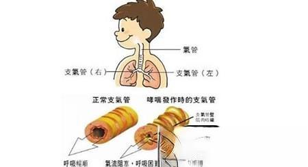 治支气管哮喘验方20则