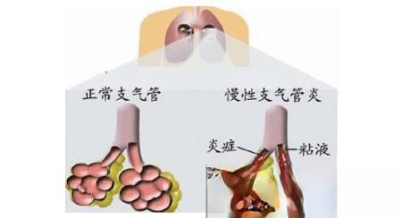 治慢性支气管炎民间验方