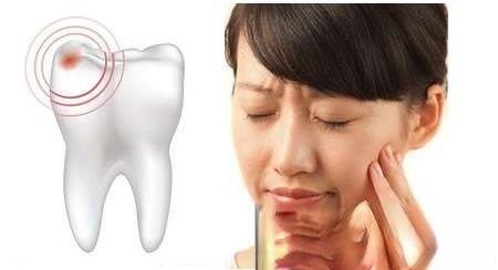 妻子的牙痛用本药方2剂治愈