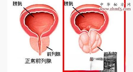 患上前列腺增生,油菜花蜜帮您解决难言偏方来自隐