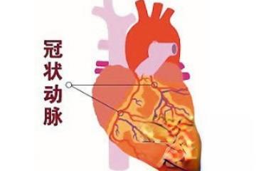 此药方治冠心病和心绞痛收效卓著