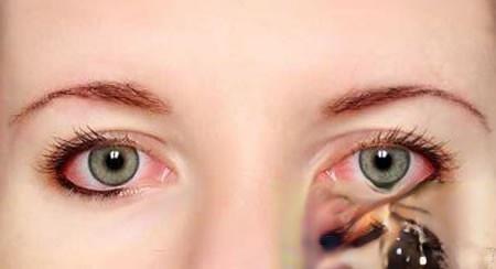 祖传五代秘方已治愈了多人的瞳孔散大