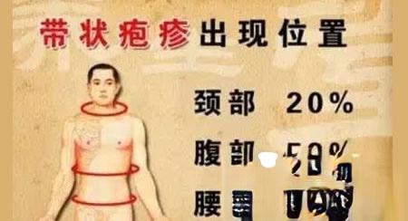 蛇盘疮,有良方(带状疱疹)!
