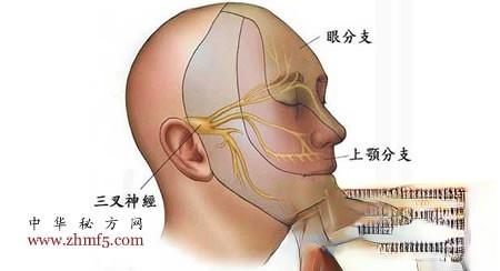 治三叉神经痛的妙方:大白萝卜挤汁滴鼻