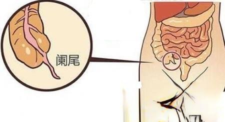 我用华佗秘方治急性阑尾炎1剂治愈