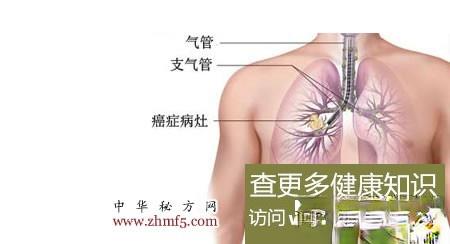 治肺癌的偏方