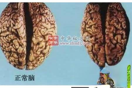 脑萎缩、记忆力衰退特效方